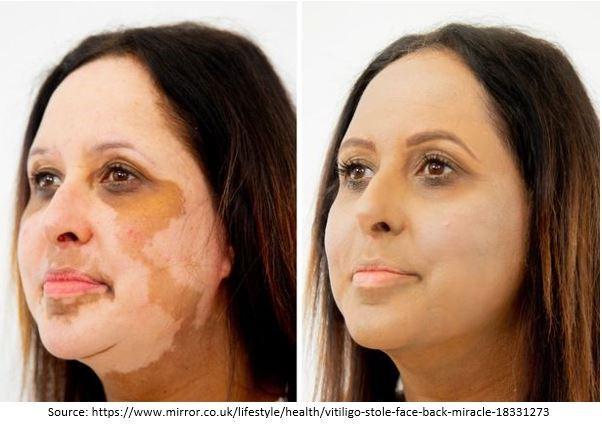 Vitiligo Treatment and Procedure