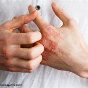 Eczema treatment & Cost