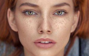 freckles images