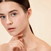 Freckle-treatment-bangalore